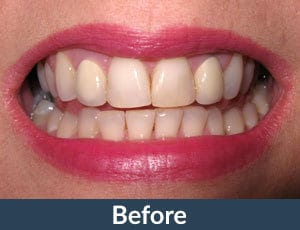A patient before porcelain veneers from Kuhn Dental.