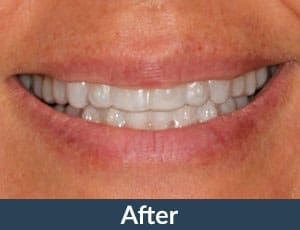 A patient with Invisalign from Kuhn Dental.
