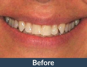 A patient before Invisalign from Kuhn Dental.