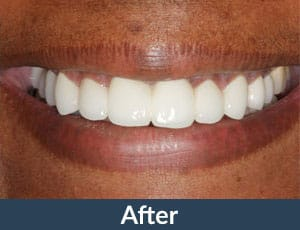 A patient with porcelain Veneers from Kuhn Dental.