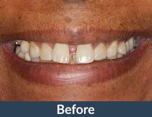 A patient before porcelain Veneers from Kuhn Dental.