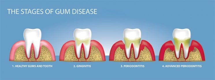 Stages of gum disease illustration