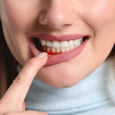 Woman showing her inflamed gums