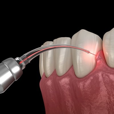 illustration of laser gum treatment