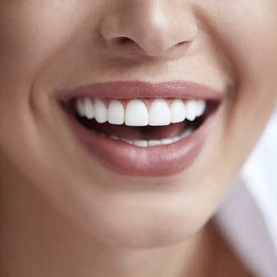 Woman's smile and teeth
