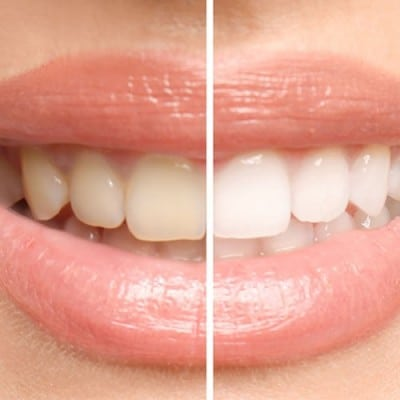 Before and after teeth whitening in Aberdeen NC
