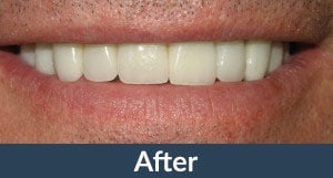 Patient with full mouth restorations from Kuhn Dental.
