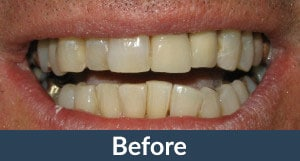 Patient before full mouth restorations from Kuhn Dental.