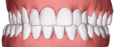 Illustration of cross bite