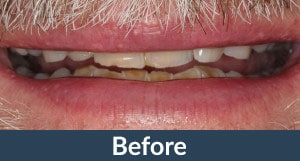 A patient before full mouth restorations from Kuhn Dental.