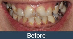 A patient before implant supported dentures from Kuhn Dental.