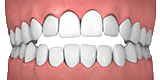 Illustration of open bite