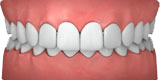 Illustration of overbite