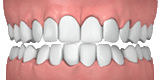 Illustration of crowded teeth