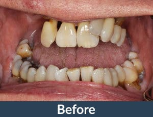A patient before dental implants from Kuhn Dental.