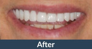 A patient with dental implants from Kuhn Dental.