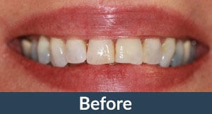 A patient before dental crowns from Kuhn Dental.