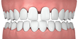 Illustration of Gaps in Teeth