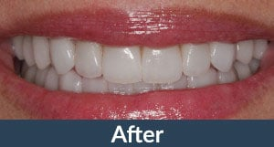 A patient with full mouth restorations from Kuhn Dental.