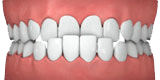 Illustration of Underbite